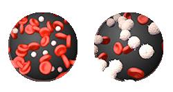 Uzorkom iz Vite 34 prvi put u svetu dokazano izlečena leukemija