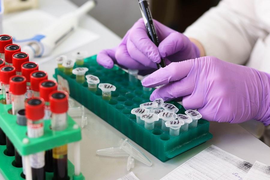 Da li se rak može izlečiti uz pomoć matičnih ćelija?
