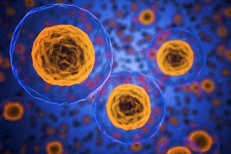 multipla skleroza lečenje matične ćelije