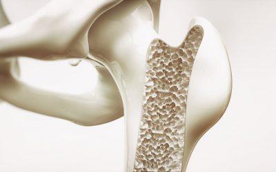 Osteoporoza: Lečenje uz matične ćelije u eri regenerativne medicine