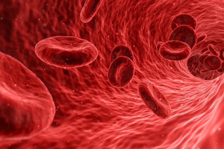 Ateroskleroza – simptomi i lečenje