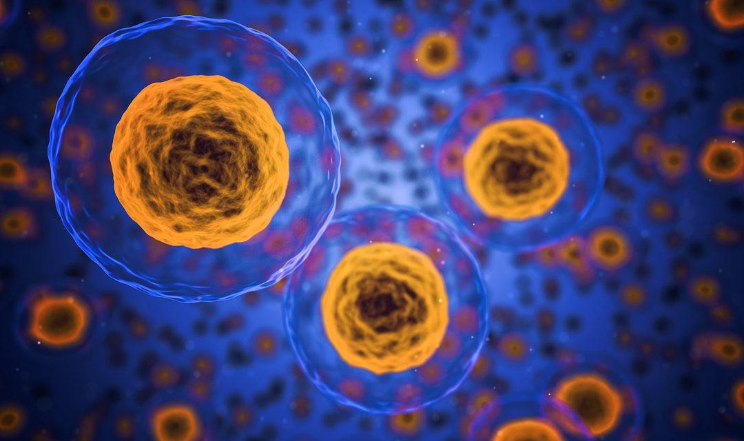 Šta je lupus i kako matične ćelije mogu da pomognu u lečenju?